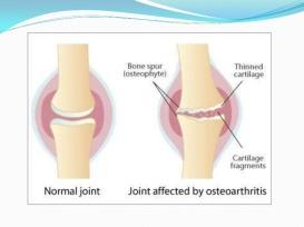 rheumatoid-arthritis-and-osteoarthritis-48-728